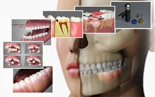 Common Oral Conditions-Cosmetic Dentistry Cary NC in Apex Smiles