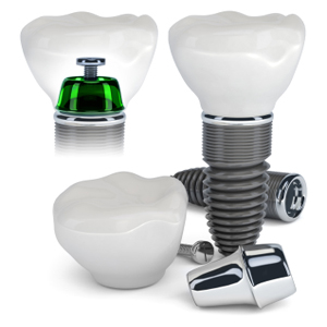 Dental Implants Cost in Apex NC and Cary NC