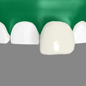 Dental Veneers Apex