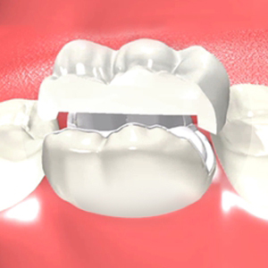 Dental Onlays Apex