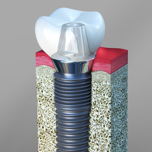 Dental Implants in Apex NC