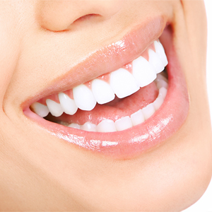 7 Steps to Choosing a Cosmetic Dentist | Apex Smiles
