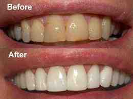 Teeth Whitening Cary NC