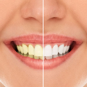 Simple Ways to Whiten Your Teeth